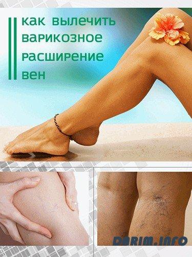 Как вылечить в домашних условиях варикоз на ногах